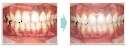 審美歯科の治療例について